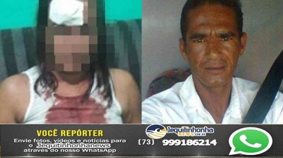 Itabela: Mulher espancada pelo marido com telha ao pedir separação