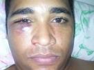 Vereador de Eunápolis sofre agressões depois de discussões sobre colocação de faixa no circuito do São João do Bairro do Pequi, em Eunápolis-BA