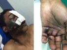 Homem fica ferido após explosão de celular durante ligação